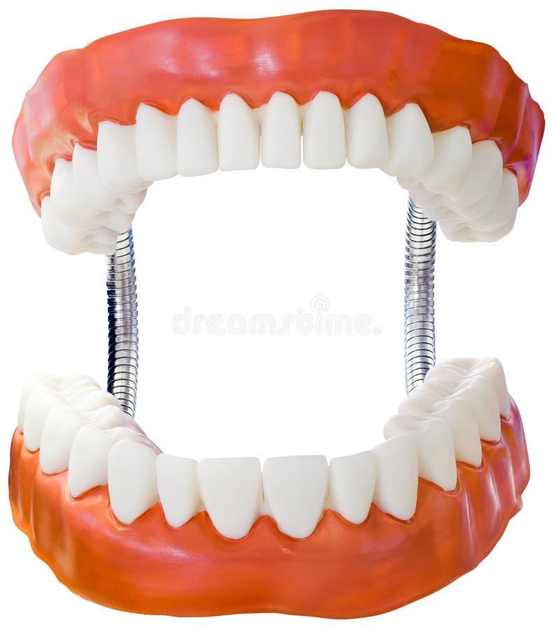 Ritaglio di modello della protesi dentaria immagini stock libere da diritti