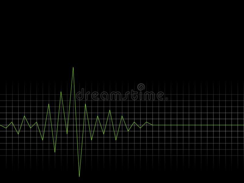 Ritmo Cardíaco Imagenes de archivo