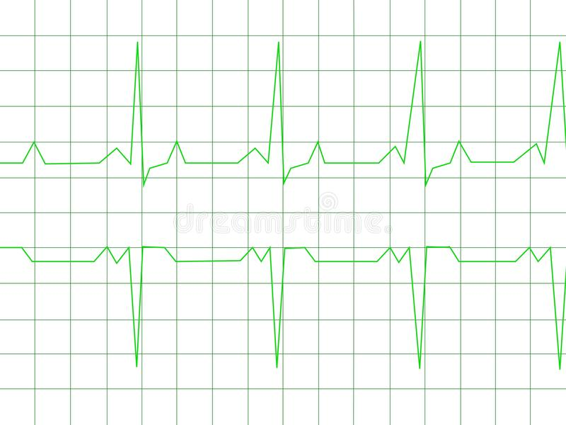 Ritmo normal do coração ilustração do vetor
