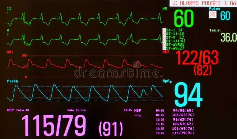 Ritmo percorso con il battito cardiaco prematuro immagine stock