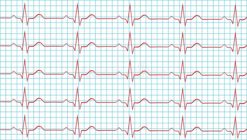 Ritmo sinusale normale del cuore sull'elettrocardiogramma illustrazione di stock