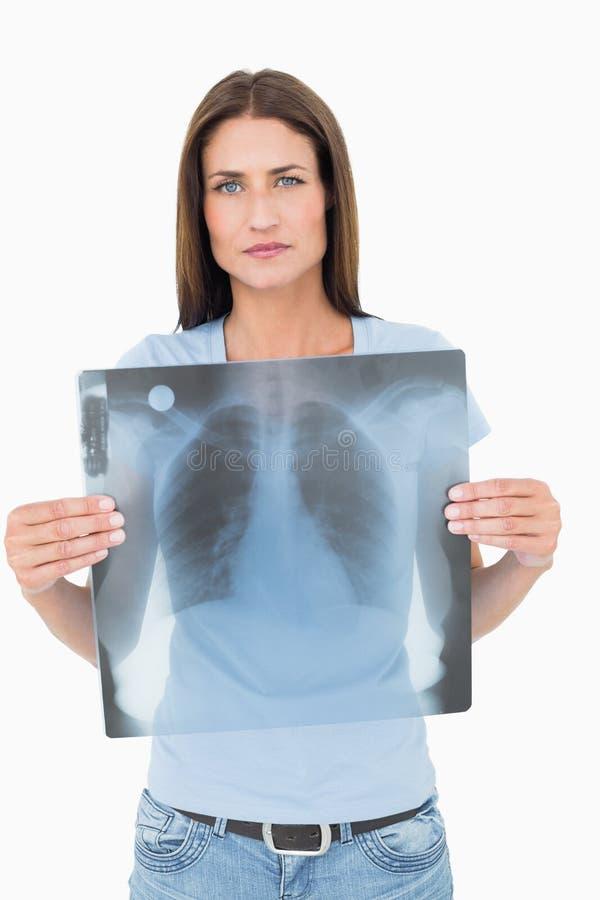 Ritratto dei raggi x seri del polmone della tenuta della giovane donna fotografie stock libere da diritti