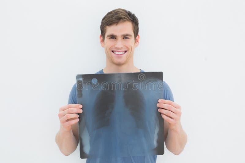 Ritratto dei raggi x sorridenti del polmone della tenuta del giovane fotografia stock libera da diritti