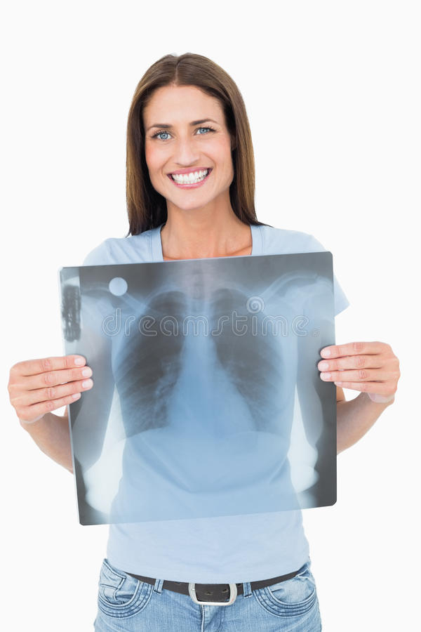 Ritratto dei raggi x sorridenti del polmone della tenuta della giovane donna fotografia stock libera da diritti