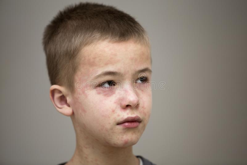Ritratto del bambino triste malato del ragazzo che soffre dal morbillo o dalla varicella con gli urti da ogni parte del fronte Ma fotografia stock