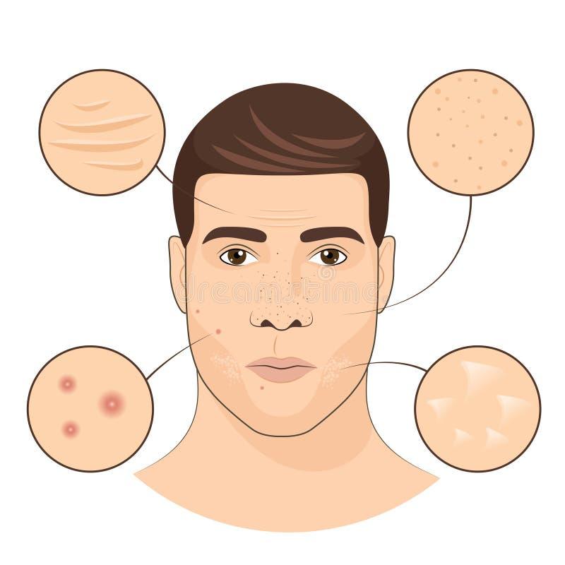 Ritratto dell'uomo con i trattamenti facciali Illustrazione di vettore di cura di pelle del fronte illustrazione di stock