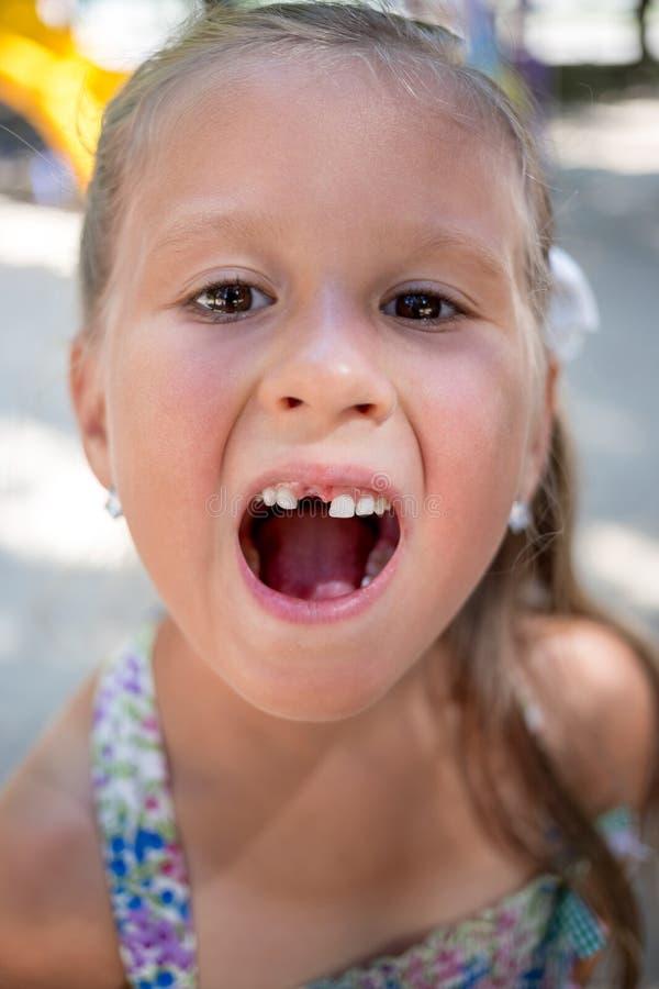 Ritratto della bambina senza un dente fotografia stock libera da diritti