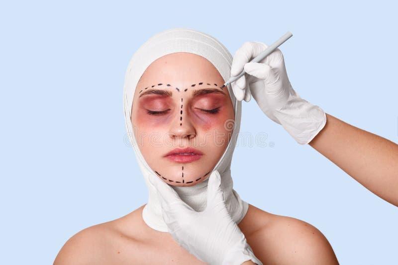 Ritratto della donna chiusa degli occhi con la fasciatura sulla testa Il chirurgo con le linee bianche di corection dei drows dei immagine stock libera da diritti
