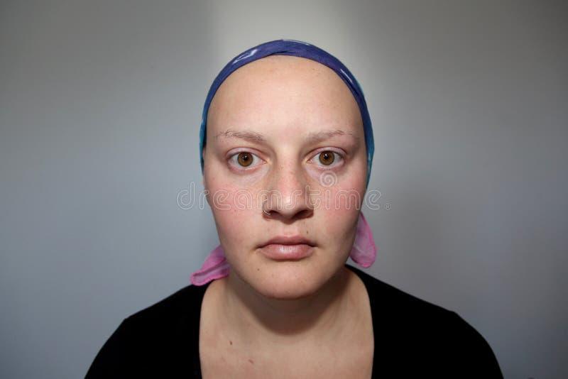 Ritratto di giovane malato di cancro che esamina macchina fotografica con un fronte serio fotografie stock libere da diritti