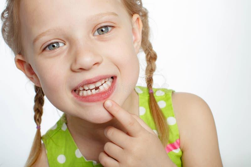 Ritratto di una bambina divertente senza un dente anteriore fotografia stock