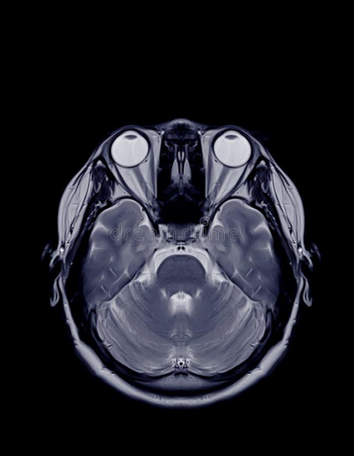 RM del plano axial cerebral foto de archivo libre de regalías
