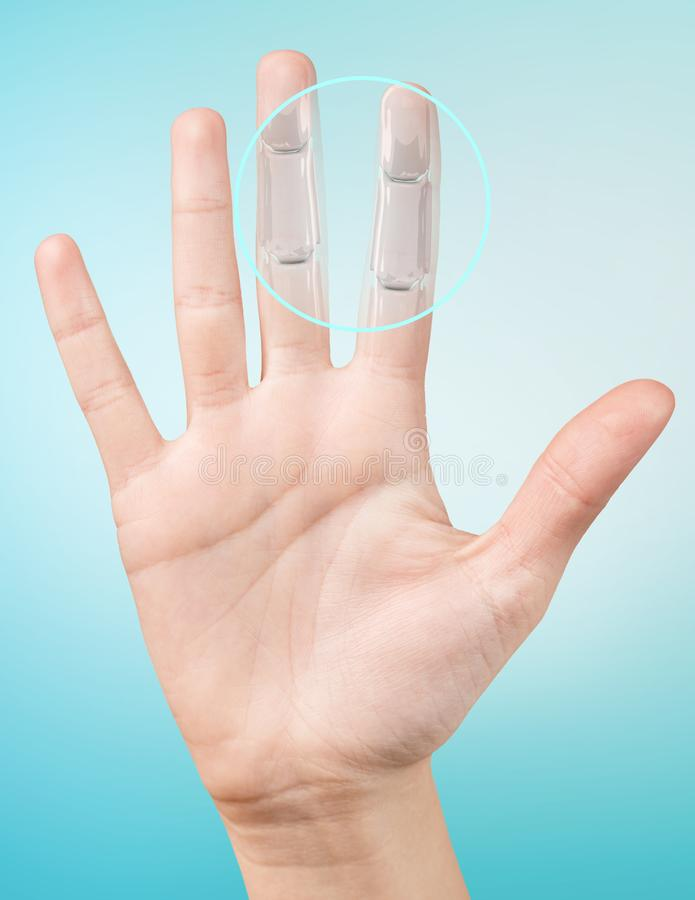 Robot hand inside human hand. Hand prosthesis concept. 3d rendering royalty free stock images