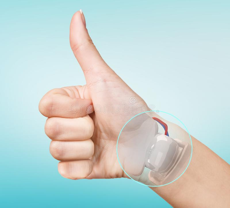 Robot hand inside human hand. Hand prosthesis concept. 3d rendering stock photo