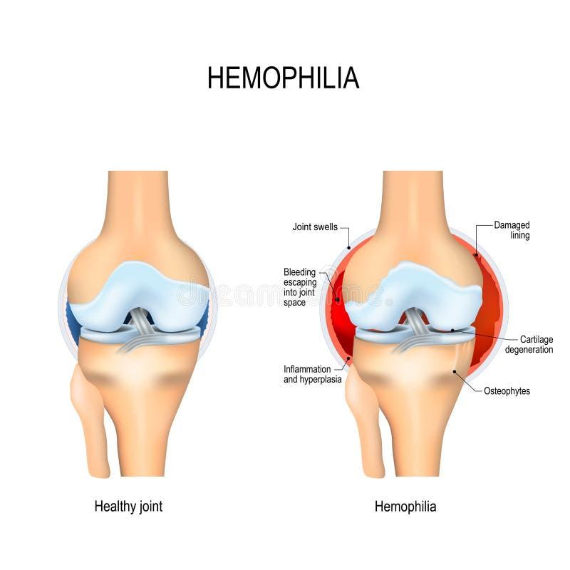 Rodilla humana con hemofilia y la junta sana stock de ilustración