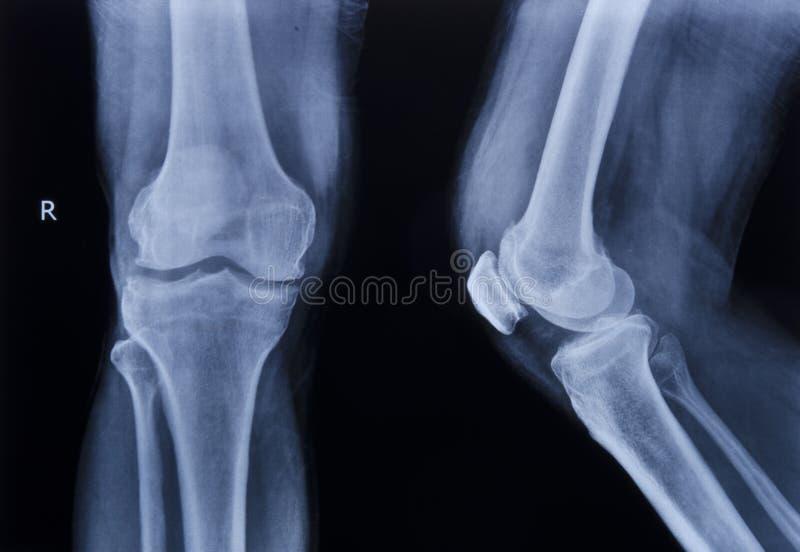 Rodilla normal de la radiografía imagen de archivo libre de regalías