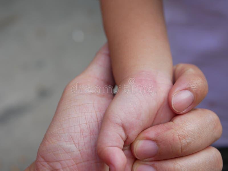 Rodnad som kliar och lite sväller efter en myggatugga på babys handled - allergin till myggasaliv behandla som ett barn in arkivbilder