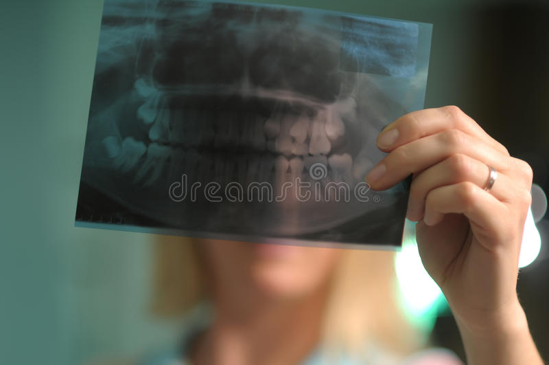 Roentgen des dents photos stock