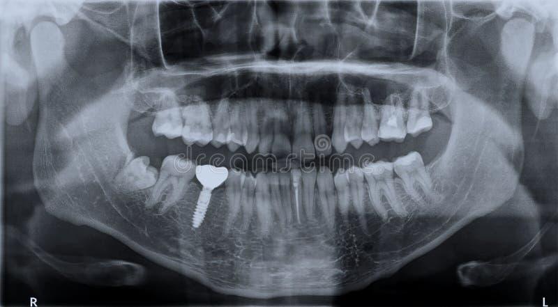 Roentgen zębu wierzch i obniża szczękę zdjęcie stock