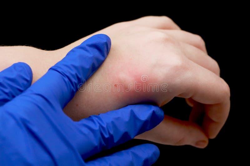 Rojez y el picar en el brazo El doctor examina la mano en la cual la mordedura de un insecto, un mosquito fotos de archivo libres de regalías