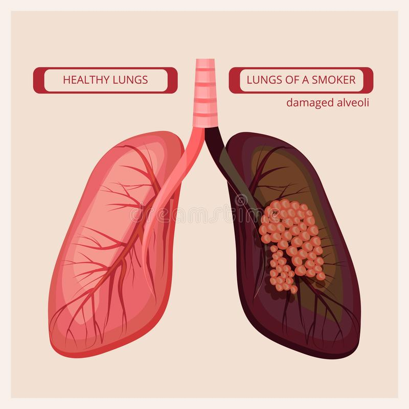 Rokerslongen De longkanker vector medische infographic beelden van de rook menselijke schade vector illustratie