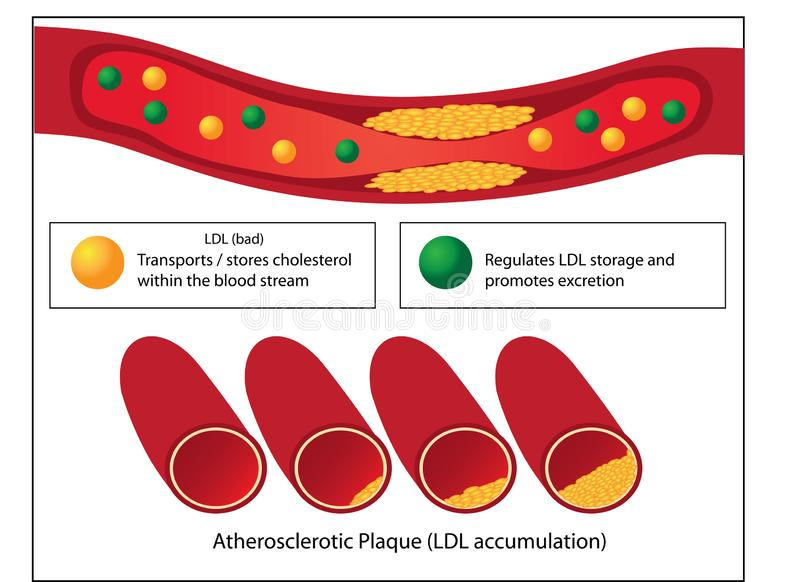 Role of good and bad lipids and levels of atherosclerotic plaque in blood vessel stock illustration