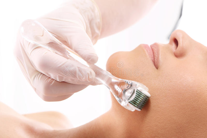 Roller microneedle mesotherapy royalty free stock images