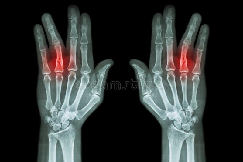 Rompez l'axe de la phalange proximale du doigt d'anneau (rayon X de film les deux main AP) photographie stock libre de droits