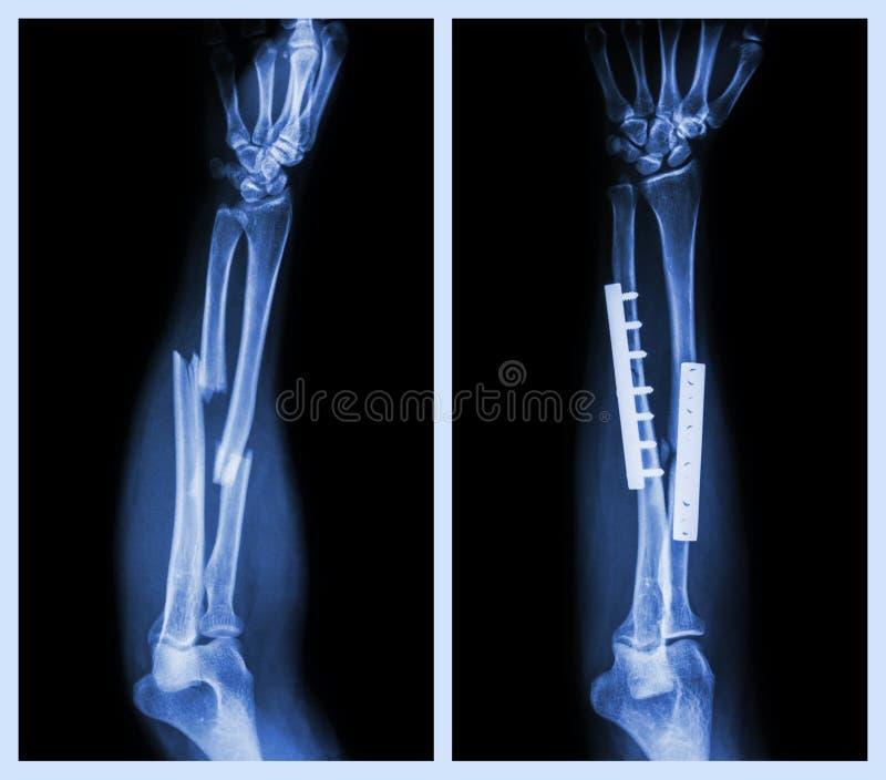 Rompez les deux l'os de l'avant-bras Il a été actionné et fixe interne avec le plat et la vis image libre de droits