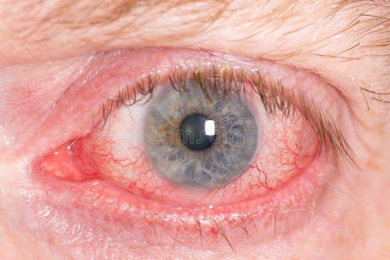 Rood menselijk oog stock foto