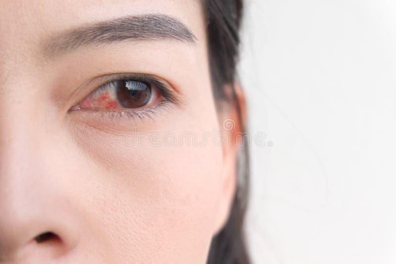 Rood oog Bindvliesontsteking of irritatie van gevoelige ogen royalty-vrije stock afbeelding
