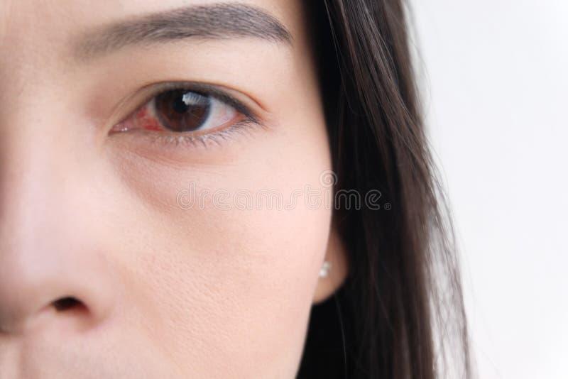 Rood oog Bindvliesontsteking of irritatie van gevoelige ogen royalty-vrije stock foto