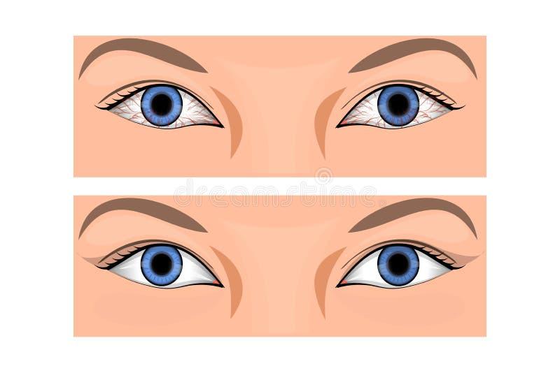 Roodheid van het oog vector illustratie