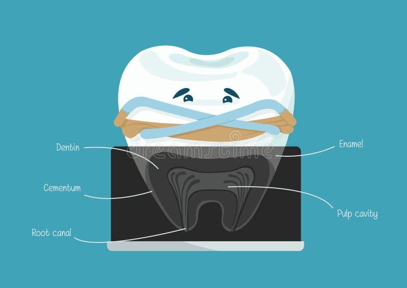 Root canal dental. Of dental vector illustration