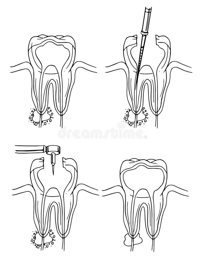 Root canal procedure. Diagram of the root canal procedure stock illustration