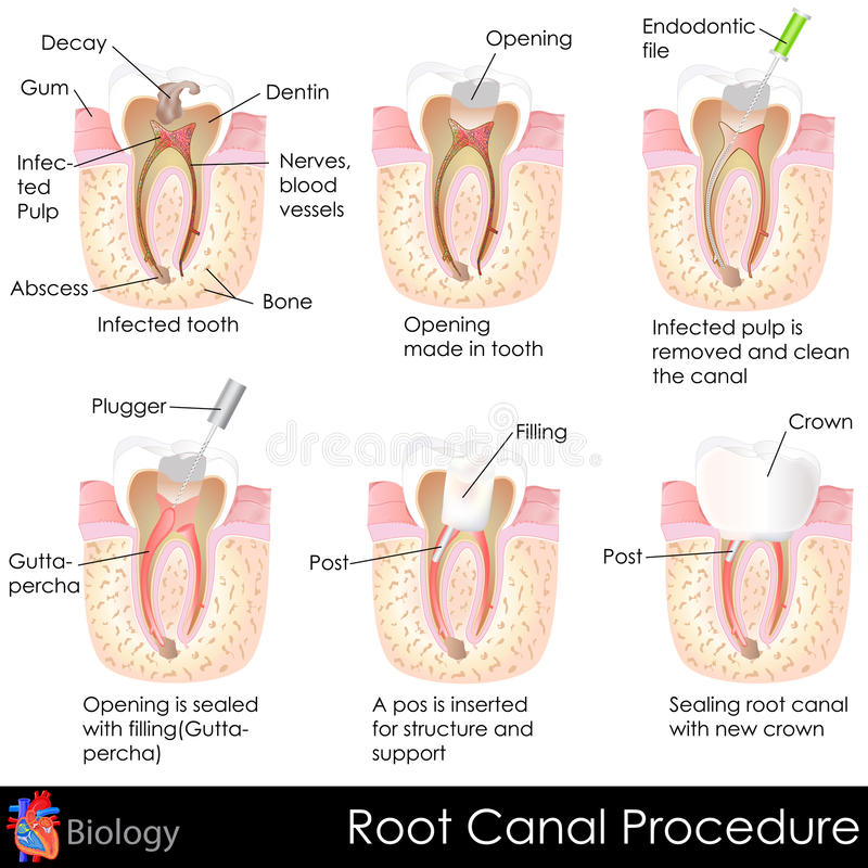 Root Canal Procedure. Easy to edit vector illustration of root canal procedure of tooth royalty free illustration