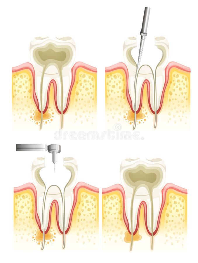 Root canal process stock illustration