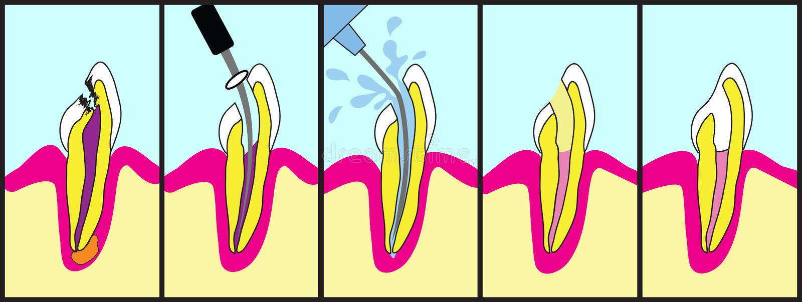 Root Canal Treatment royalty free illustration