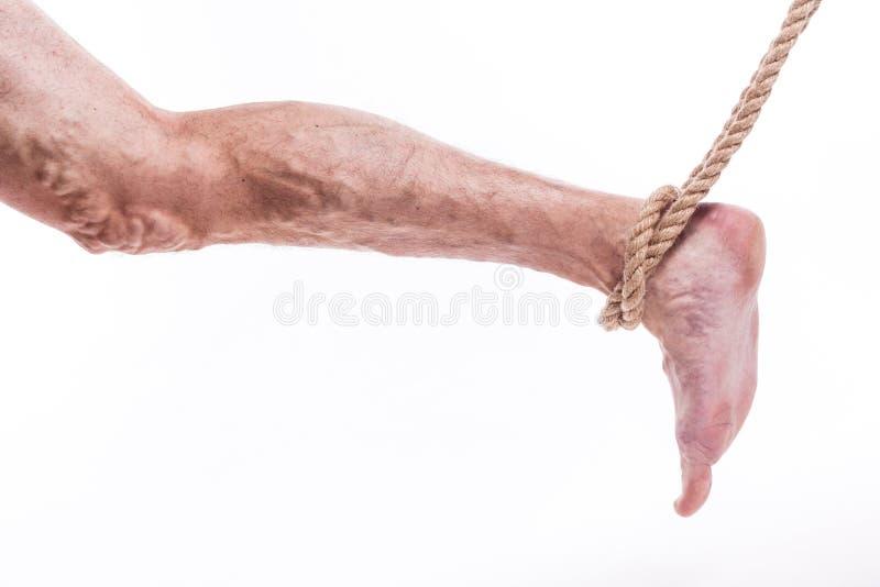 Rope das Halten des menschlichen Beines, das Krampfadern des unteren extrem schmerzt lizenzfreie stockfotografie