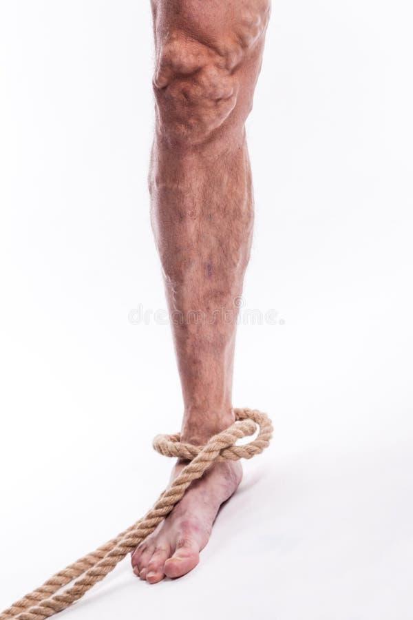 Rope la tenuta della gamba umana che indispone le vene varicose del extrem più basso immagini stock