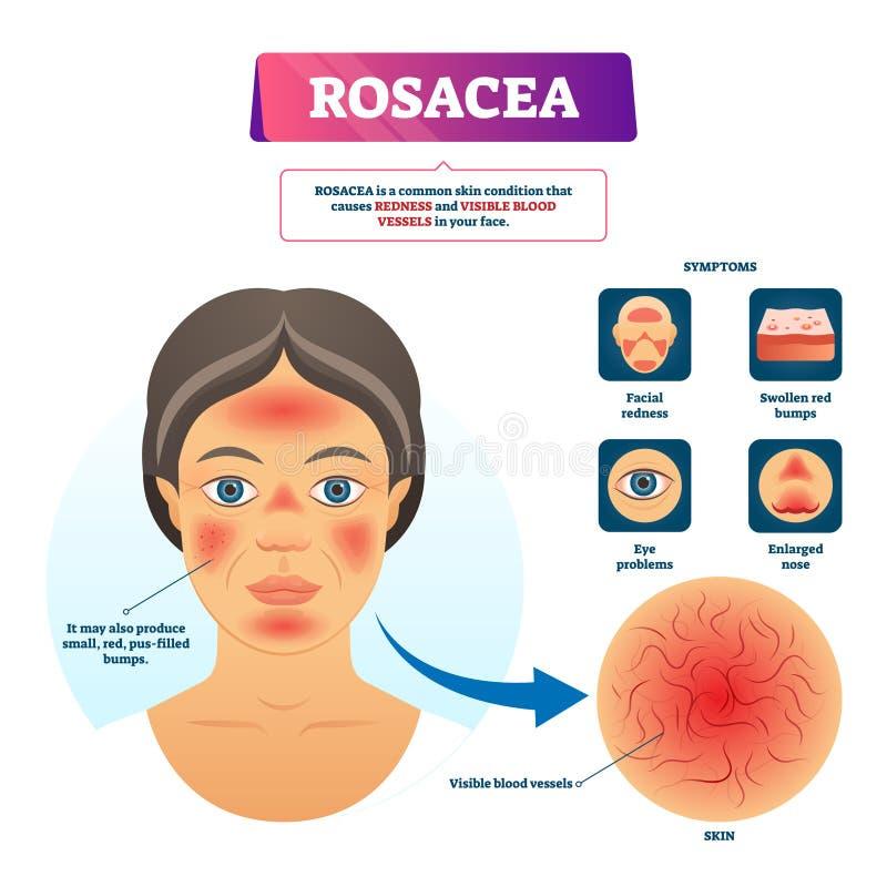 Rosacea传染媒介例证 被标记的红色皮肤问题解释计划 皇族释放例证