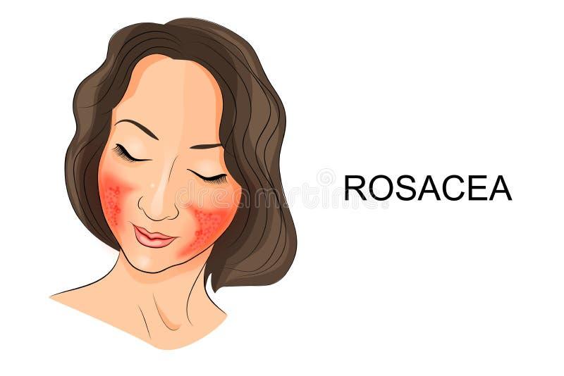Rosacea auf dem Mädchengesicht dermatologie stock abbildung