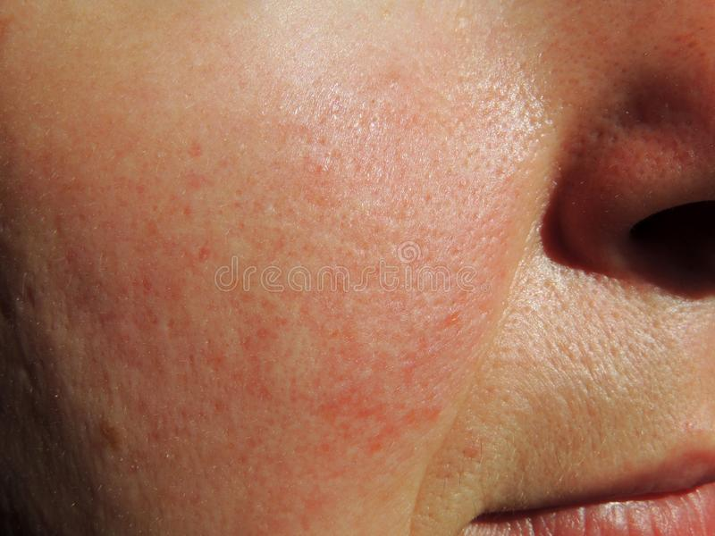 Rosacea on face of middle aged woman royalty free stock photos