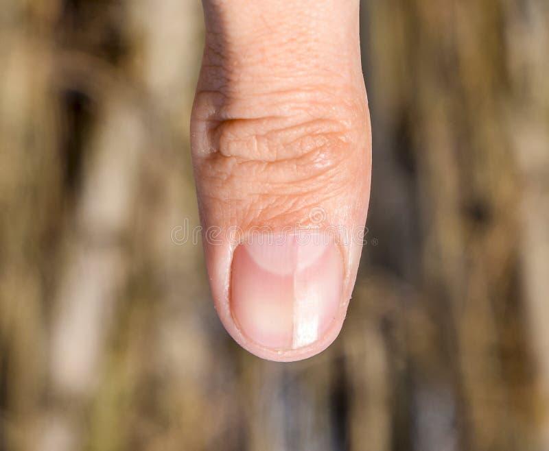 Rosochaty gwóźdź na kciuku Rozparcie gwóźdź, pourazowa patologia Gwóźdź dzieli w połówce obraz stock