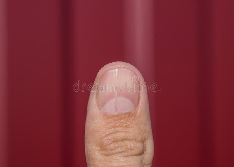 Rosochaty gwóźdź na kciuku Rozparcie gwóźdź, pourazowa patologia Gwóźdź dzieli w połówce obrazy stock