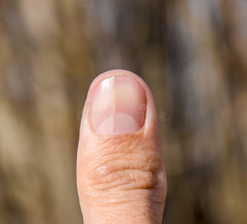 Rosochaty gwóźdź na kciuku Rozparcie gwóźdź, pourazowa patologia Gwóźdź dzieli w połówce zdjęcie stock
