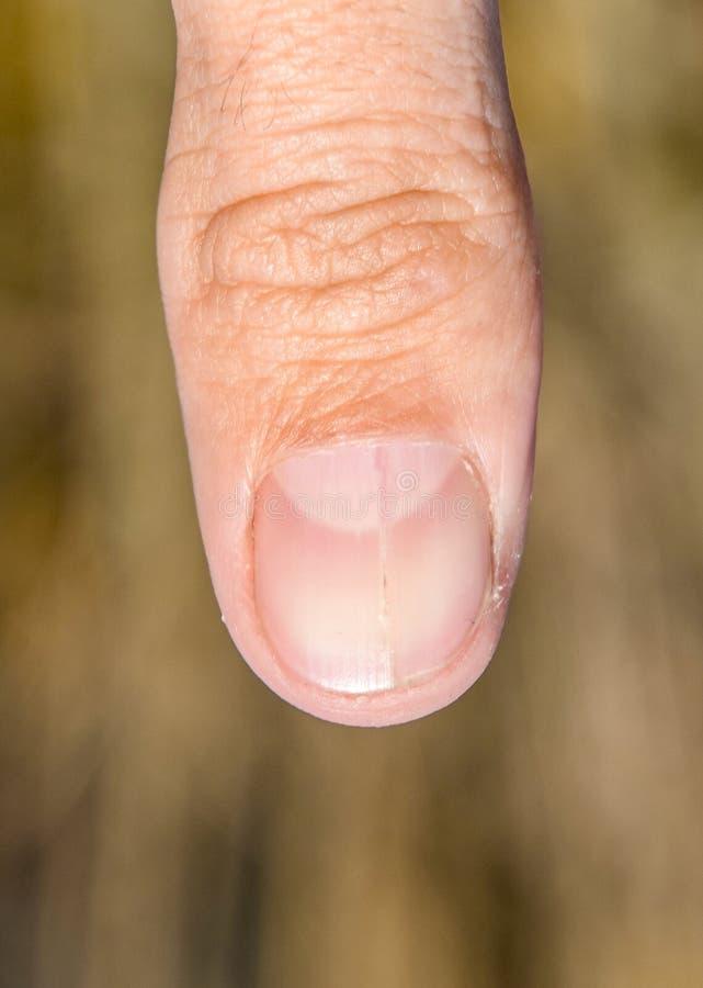 Rosochaty gwóźdź na kciuku Rozparcie gwóźdź, pourazowa patologia Gwóźdź dzieli w połówce fotografia stock