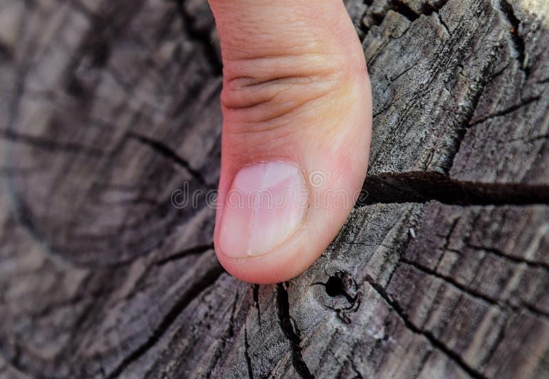 Rosochaty gwóźdź na kciuku Rozparcie gwóźdź, pourazowa patologia Gwóźdź dzieli w połówce zdjęcia royalty free