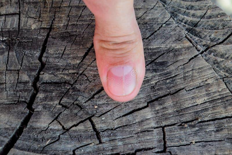 Rosochaty gwóźdź na kciuku Rozparcie gwóźdź, pourazowa patologia Gwóźdź dzieli w połówce zdjęcie royalty free