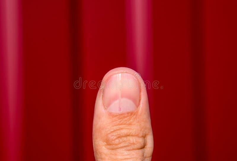 Rosochaty gwóźdź na kciuku Rozparcie gwóźdź, pourazowa patologia Gwóźdź dzieli w połówce obrazy royalty free