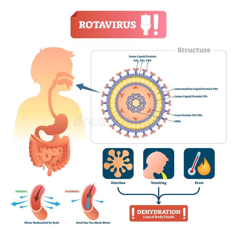 Rotavirusvektorillustration Beschrifteter Magen medizinische Krankheit mit Symptom lizenzfreie abbildung